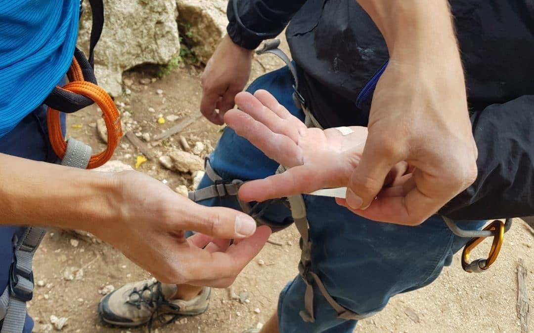 Le lesioni della puleggia nei climbers – Utilizzo del Tape
